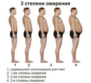 Ожирение II-III степени
