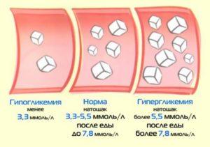 Норма сахара в крови
