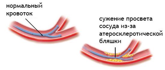 Бляшки из холестерина