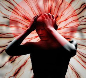 Невропатическая головная боль