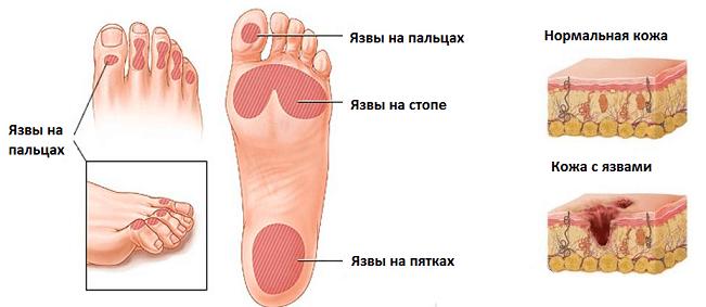 Диабетическая стопа схема