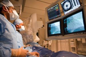 Рентгеноконтрастная ангиография