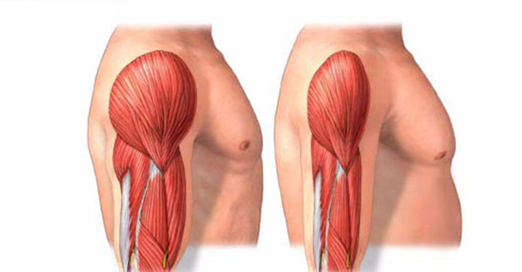 Снижение тонуса мышечной ткани