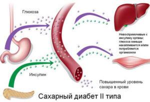 Участие печени в сахарном диабете