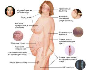 Синдром Иценко — Кушинга