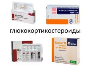 Глюкокортикостероиды