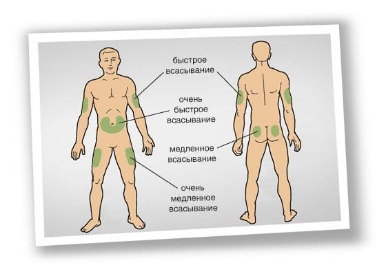 Инъекции инсулина