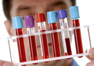 Сдать новый анализ крови