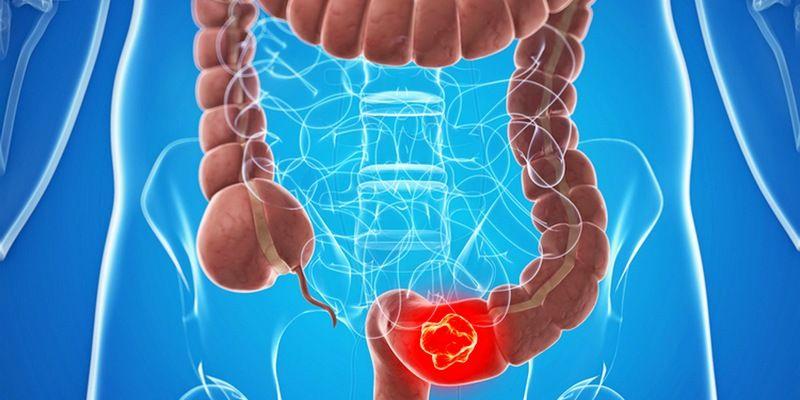 Желудочно-кишечные серьезные патологии