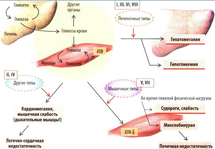 Нарушения обмена глюкозы