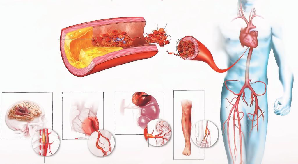 Атеросклероз системного типа
