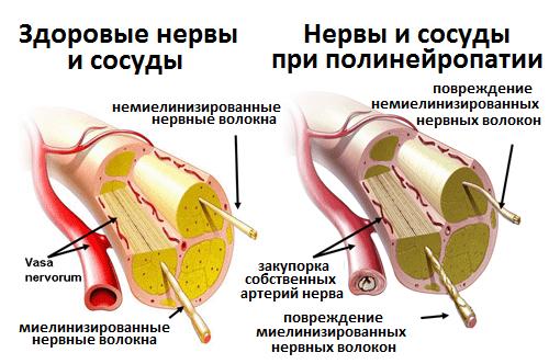 Нейропатия