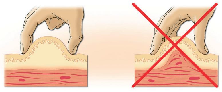 Подкожная инъекция инсулина