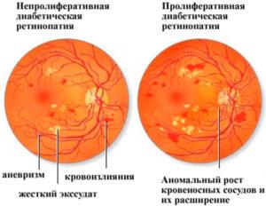 Диабетической ретинопатии