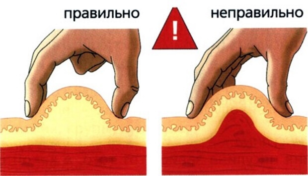 Сделайте кожную складку