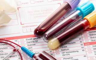 Если показатели сахара в крови 7,7 — что это значит и что делать?