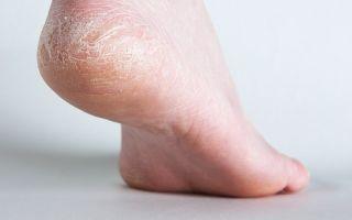 Лечение диабетической стопы в домашних условиях