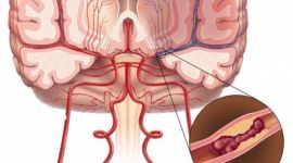 Диабетическая микроангиопатия — диагностика и лечение