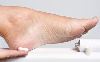 Лучшие крема для ног при сахарном диабете