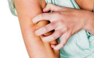 Чем опасен зуд при сахарном диабете у женщин и как его лечить