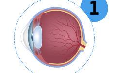 Диагностика диабетической ретинопатии