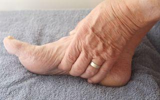 Причины онемения ног при сахарном диабете, последствия
