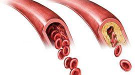 Макроангиопатия при сахарном диабете — причины и методы лечения