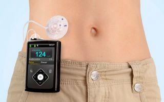 Инсулиновая помпа для диабетиков — инструкция по применению