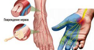 Методы лечения диабетической полинейропатии