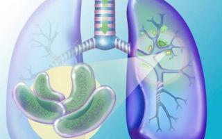 Туберкулез при сахарном диабете: течение болезни и лечение