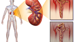Справка о диабетической нефропатии