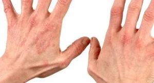 Классификация кожной сыпи и поражений у диабетиков