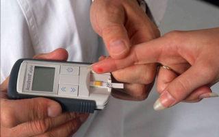 Основные методы диагностики сахарного диабета