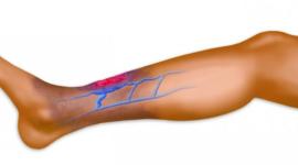 Язвы на ногах при сахарном диабете требуют незамедлительного лечения