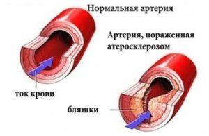 Артерия пораженная атеросклерозом
