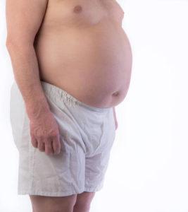 Андроидный тип ожирения