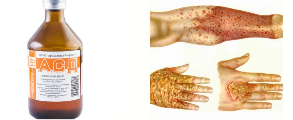 Для лечения кожных заболеваний