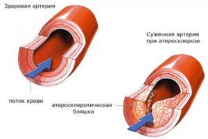 Атеросклероз крупных артерий