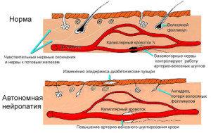 Автономная полинейропатия