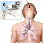 Бронхоскопическое диагностирование