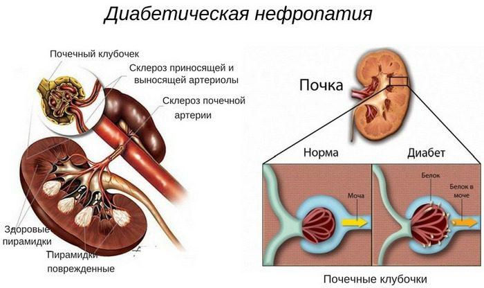 Диабетическая нефропатия - что это такое, симптомы и лечение