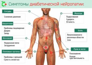 Симптомы нейропатии