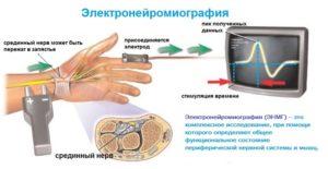 Электронейромиографию