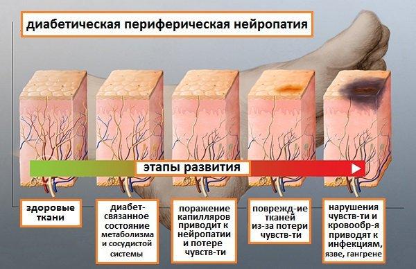 Диабетическая нейропатия нижних конечностей - что это такое