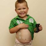 Инсулиновая помпа для детей