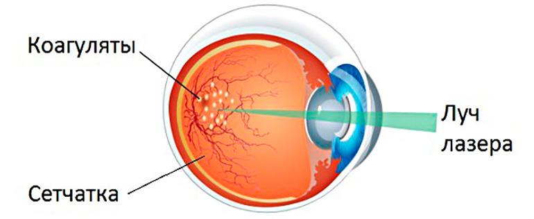 Лазерная коагуляция сетчатки глаз