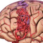 Нарушение мозговой деятельности