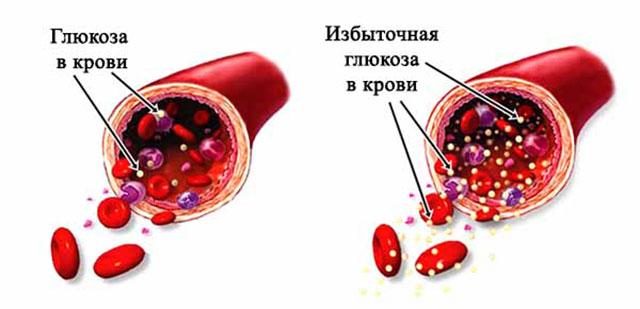 Повышение уровня глюкозы в крови