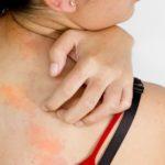 Появление аллергических кожных реакций