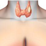 Новообразования щитовидной железы